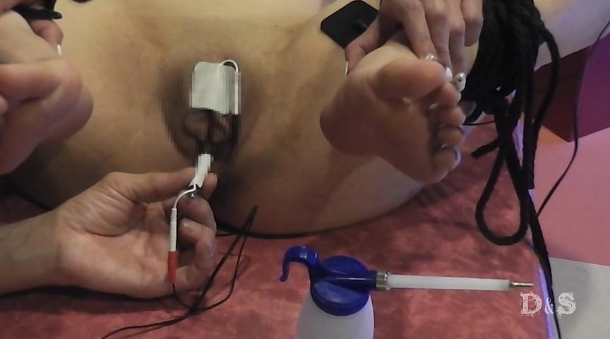 尿道電気責め
